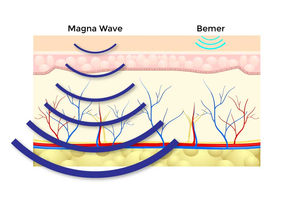 magna-wave-vs-bemer-through-the-body